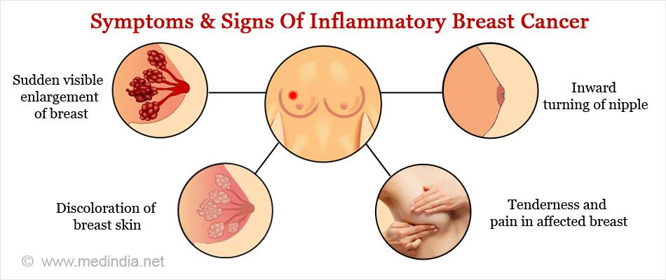 Today Is Inflammatory Breast Cancer Awareness Day Met Up Uk Busylivingwithmets