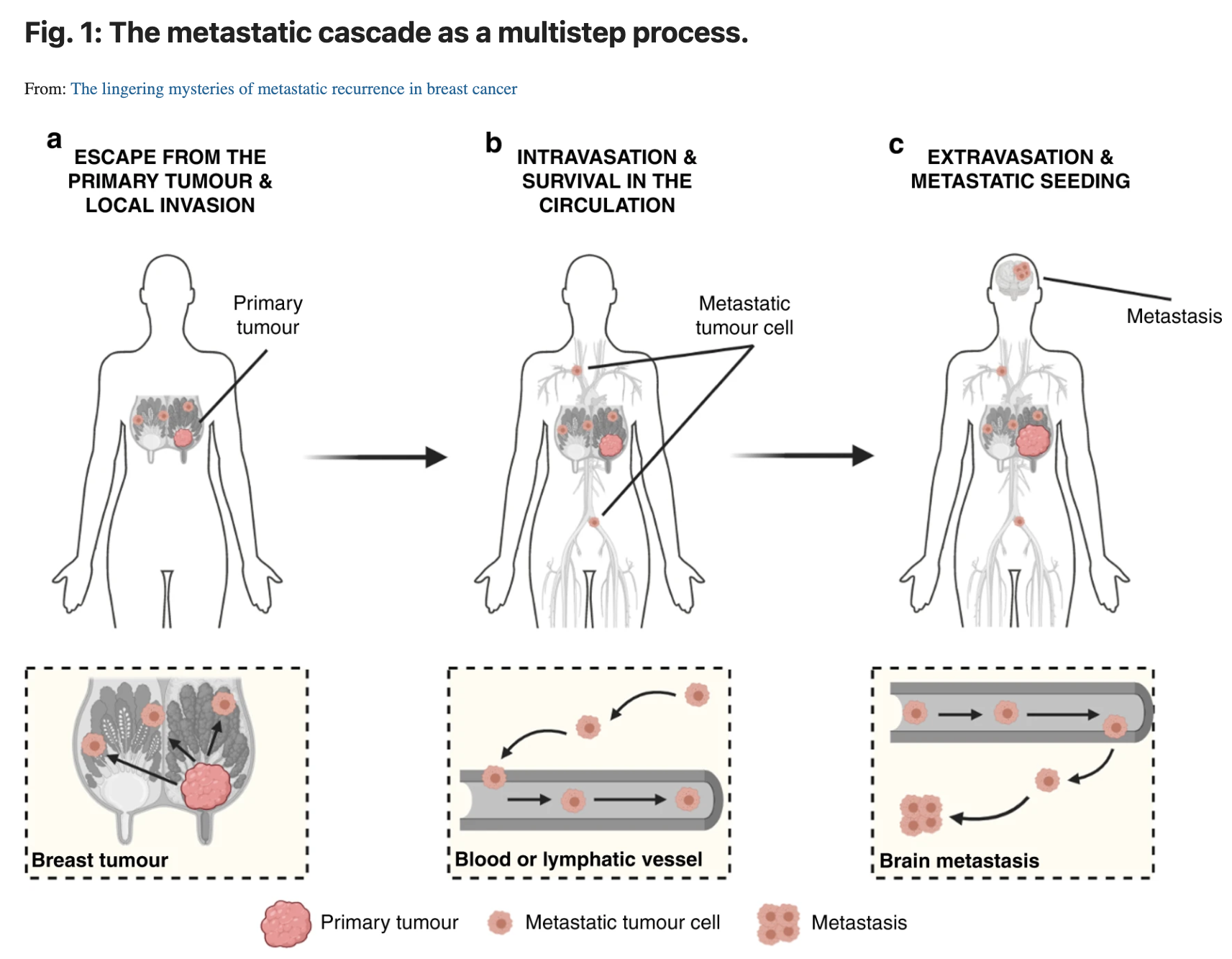 Illustration of metastatic process from article
